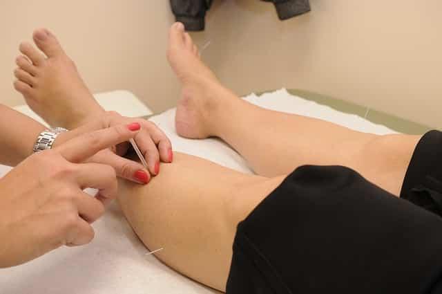 Almere acupunctuur
